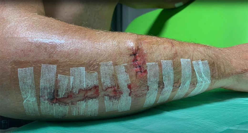 Davy Pootjes arm injury